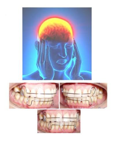 Retenedores Pos Ortodoncia Y Aparatos Ofm Dentales